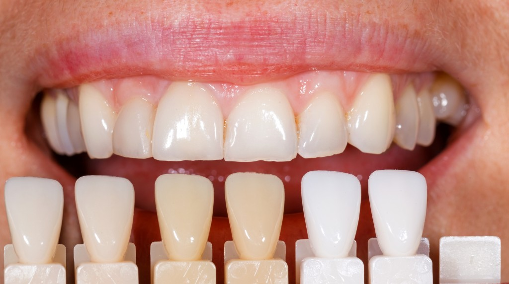 Image result for Colored Tooth Fillings